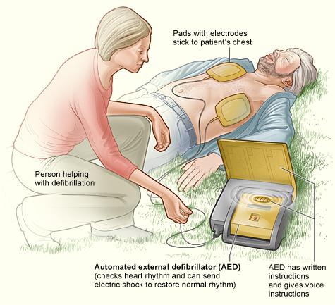 Automated External Defibrillator - Typical Setup
